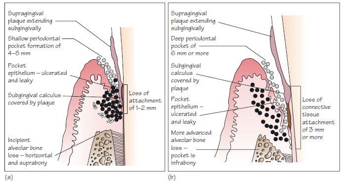 34  Chronic Periodontitis
