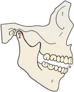the current definition of centric relation describes condyles as articulating with the thinnest avascular portion of their respective disks with the complex