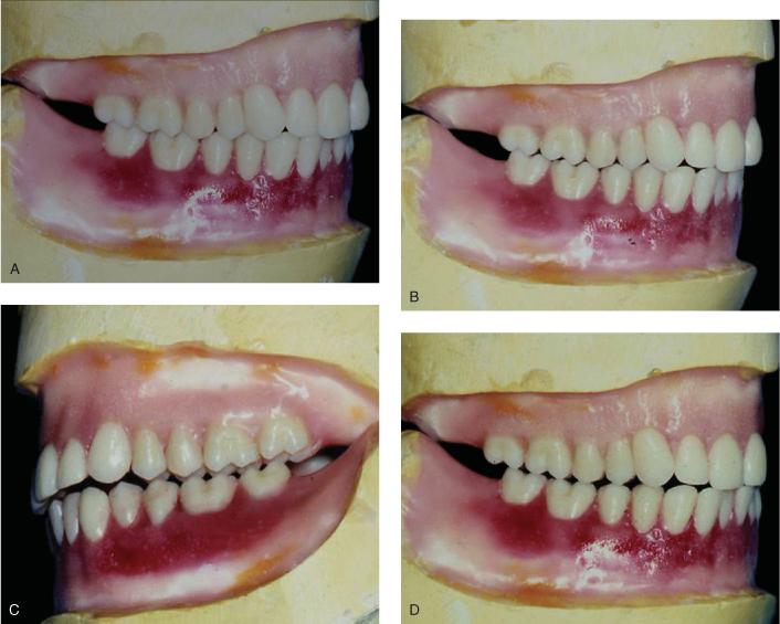 5. Occlusion | Pocket Dentistry