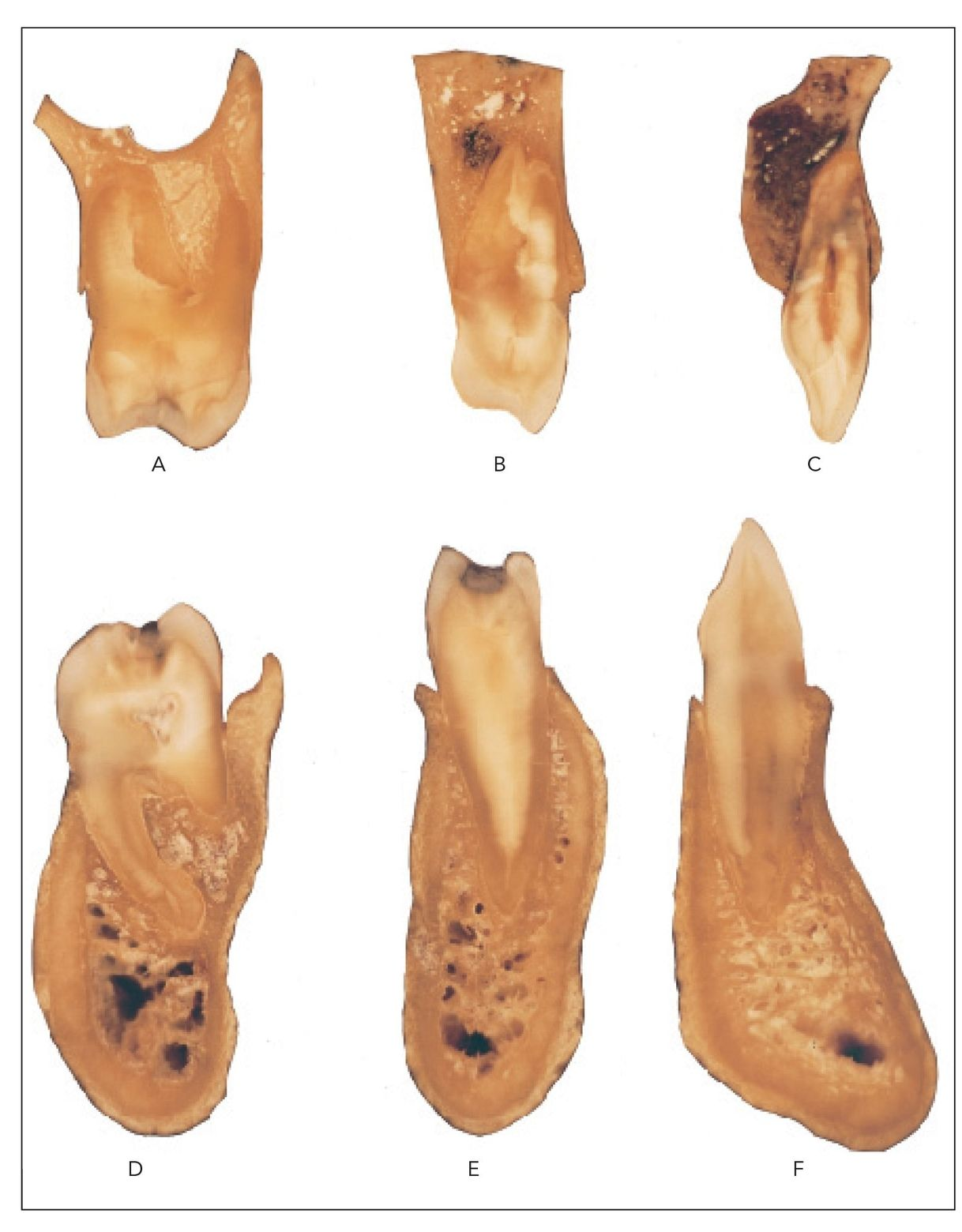 secondary bone grafting in alveolar clefts thesis Evaluation of secondary bone grafting of the alveolar cleft in adult cleft lip and palate patients article in asian journal of oral and maxillofacial surgery 24(2) may 2012 with 13 reads.