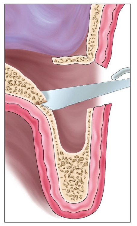Sinus Floor Elevation With Osteotomes : Sinus graft combined with osteoperiosteal flaps