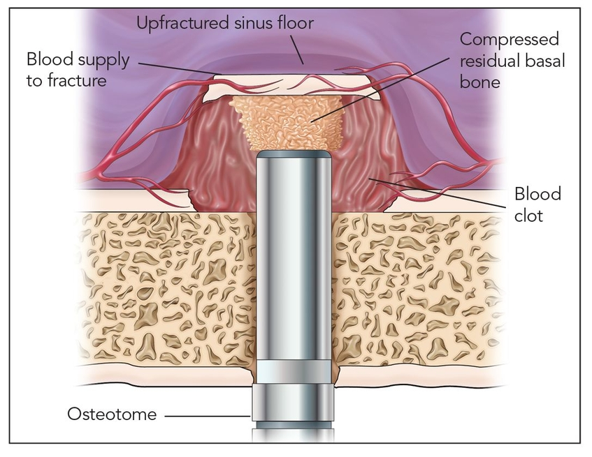 Sinus Floor Elevation Using Osteotomes : Sinus floor intrusion as a vascularized