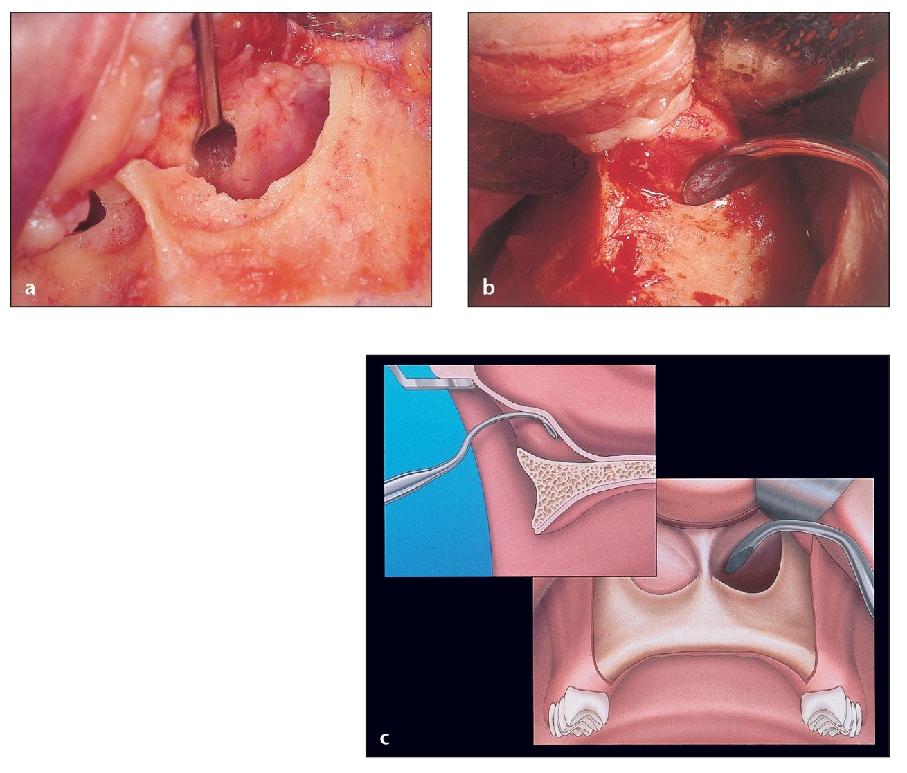 Sinus Floor Elevation Using Osteotomes : Subnasal elevation and bone augmentation pocket