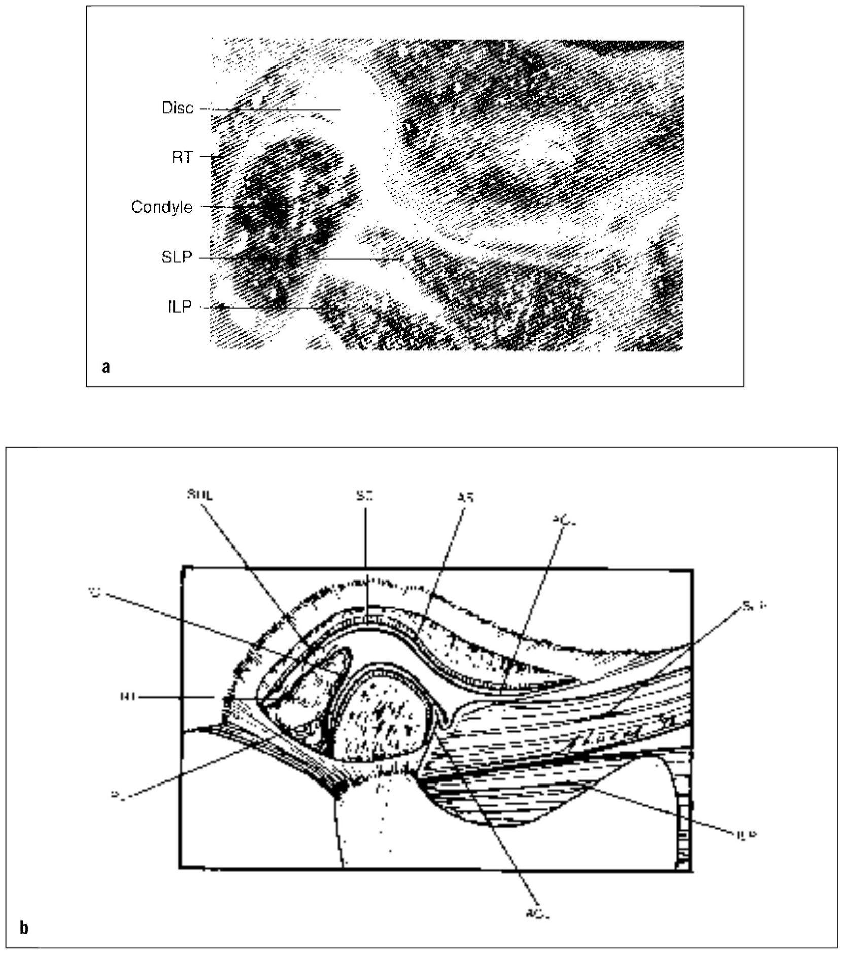 13  U2013 Temporomandibular Joint Pains