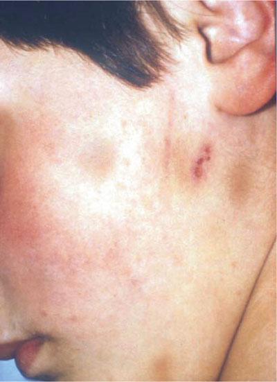 Unexplained facial bruising