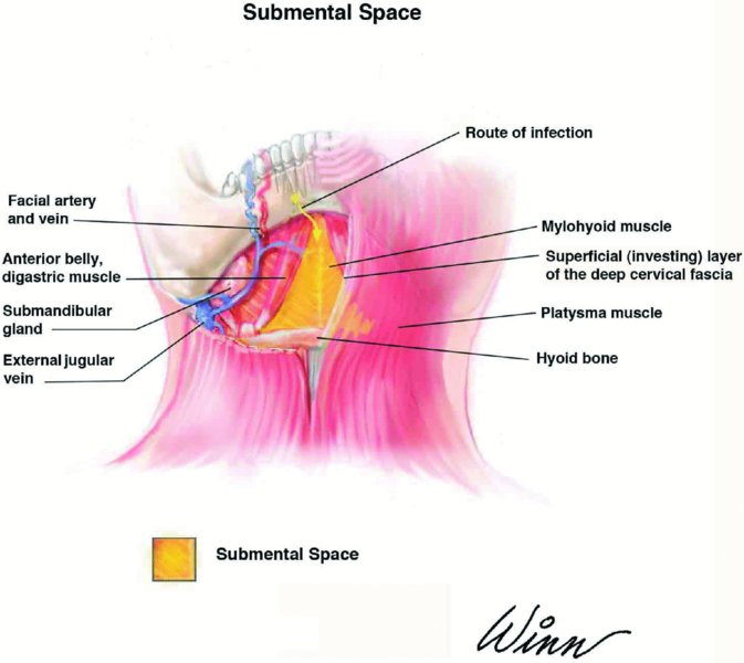 10: Review of Spaces   Pocket Dentistry