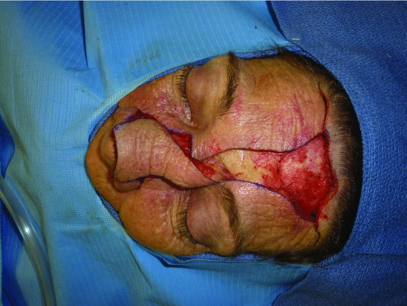 10: Paramedian forehead flap | Pocket Dentistry