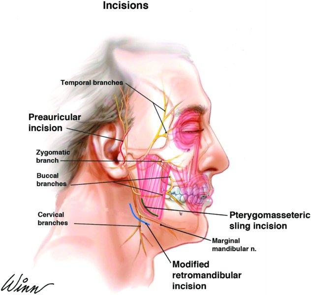 facial nerve preservation