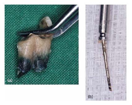 12 Root Canal Filling Materials Pocket Dentistry