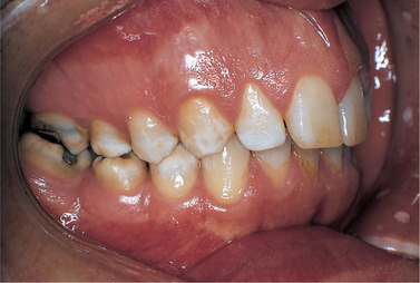 amelogenesis imperfectaa Amelogenesis imperfecta is a heterogeneous group of inherited disorders of  enamel formation, affecting both deciduous and permanent teeth the purpose of .
