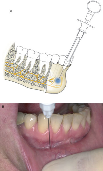 6 Local anaesthesia in the lower jaw | Pocket Dentistry