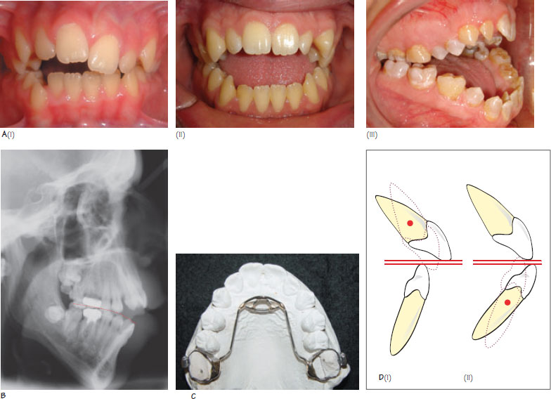26 open bite malocclusion pocket dentistry