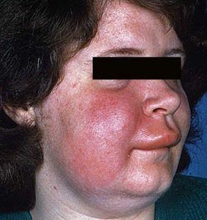 Accept. facial lip swelling