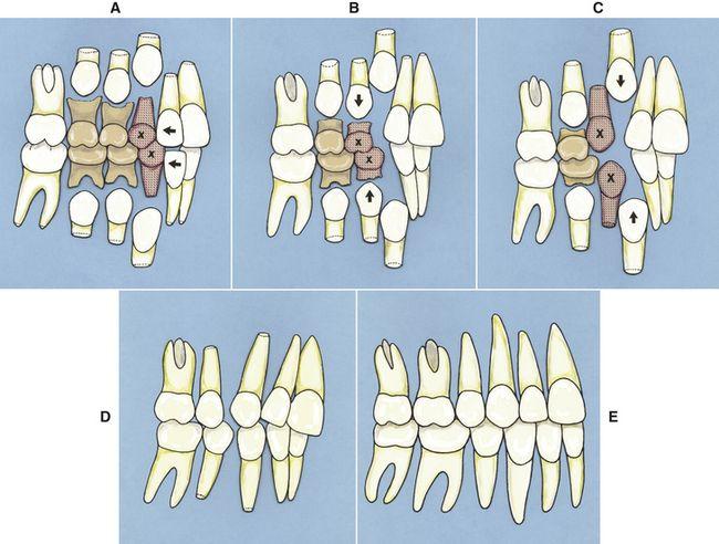 11 Phase I Early Treatment Pocket Dentistry