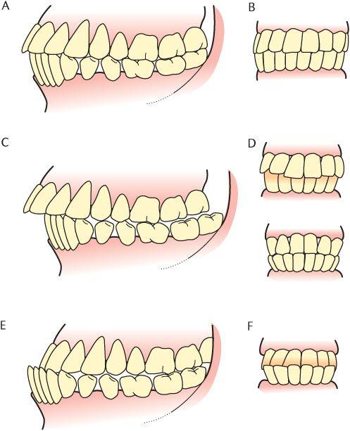 26 Mastication | Pocket Dentistry
