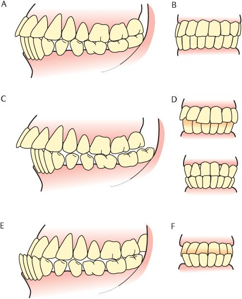 Hd Wallpapers Permanent Teeth Diagram Illustration