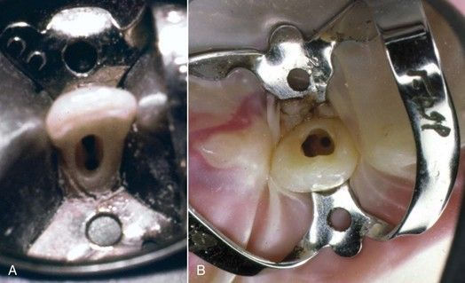 8 Problem Solving In Tooth Isolation Access Openings