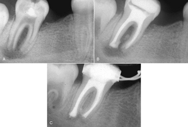 removal of calcium hydroxide from root canal Helpful calcium hydroxide is used as an interim filling material until the final filling material is placed in the canals calcium hydroxide is used to kill any remaining bacteria in the canal until sealed.