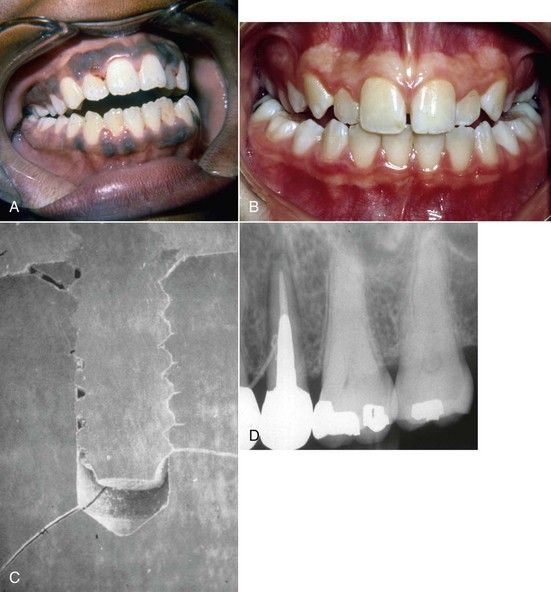 19: Problem Solving In The Management Of Tooth Fractures