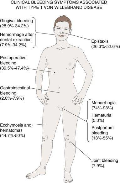 25: Congenital Bleeding and Hypercoagulable Disorders | Pocket Dentistry