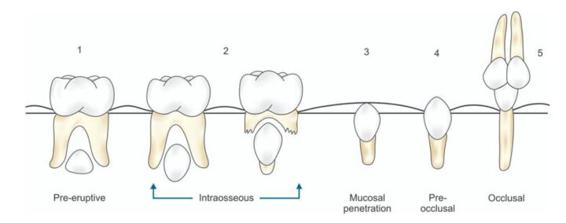 2 why teeth get impacted pocket dentistry 11 schematic diagram showing different stages of eruption of tooth ccuart Image collections