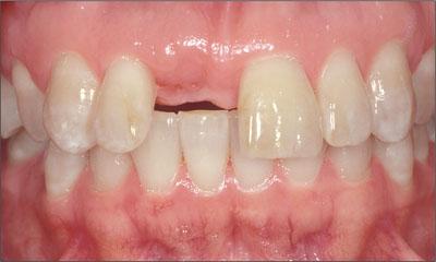 sac classification implant dentistry pdf